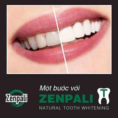 Mách bạn cách ngăn ngừa hư tổn và mất men răng